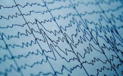 Brain Waves Can Predict Pain Sensitivity