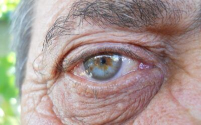 Reversing vision loss by turning back the aging clock