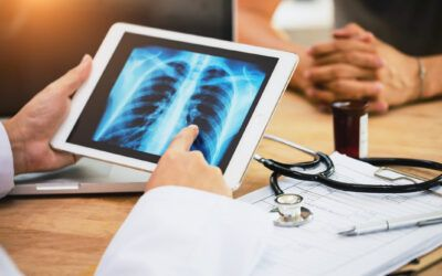 Artificial Intelligence Identifies Lung Cancer Patients at Risk of Harm Caused by Immunotherapy