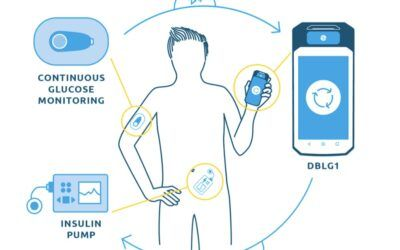 Roche inks deal with Diabeloop to integrate automated insulin delivery