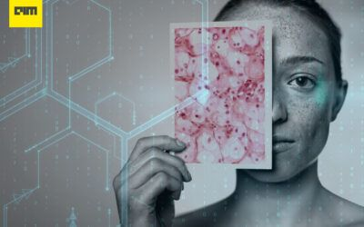 MIT Researchers Develop An AI Tool To Detect Skin Cancer