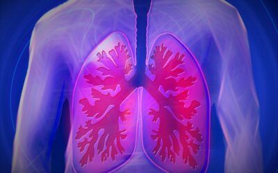 Artificial Intelligence Detects Lung Cancer Risk