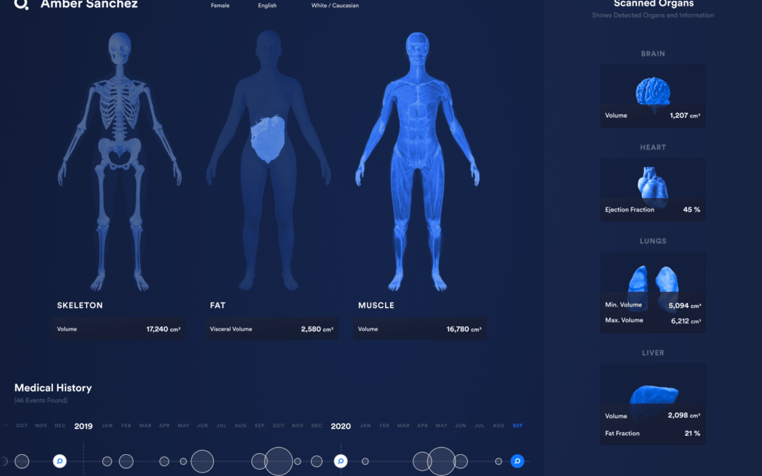 "Q Bio Launches Clinical ""Digital Twin"" Platform, Whole Body Scanner"