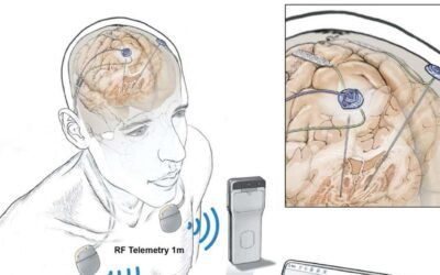 In a First, People Had Their Brain Activity Tracked Remotely During Everyday Life