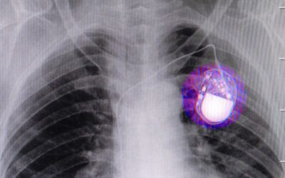 Apple's wireless charging tech may interfere with pacemakers