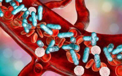 AI-based early warning system for sepsis can improve patient outcomes